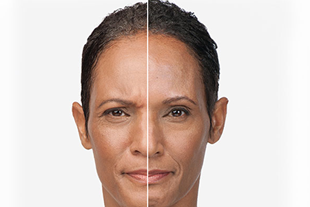 Botox before and after, Euless TX