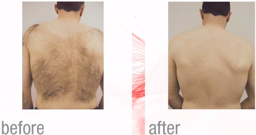 Laser Hair Reduction, Euless, TX